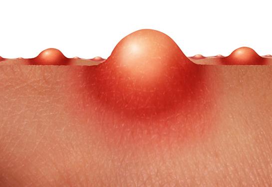 Vajinada Sivilce Sorunu – Genital Bölgedeki Sivilcenin Çözümü